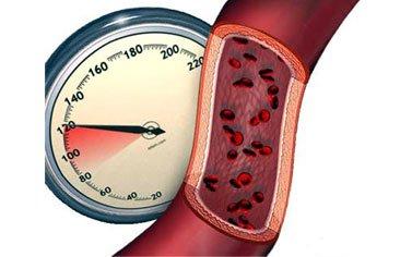 Ингибиторы АПФ в лечении артериальной гипертензии
