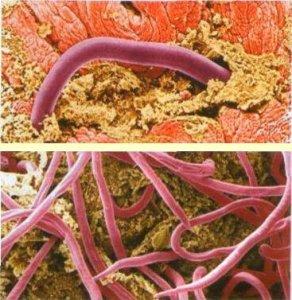 Аскаридоз: эпидемиология, клиника, профилактика