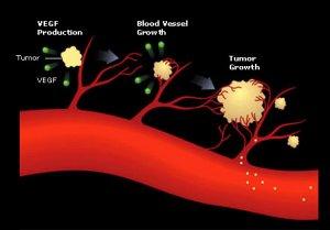 Ангиогенез- Антиоксиданты