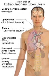 Борьба с туберкулезом: объединим усилия