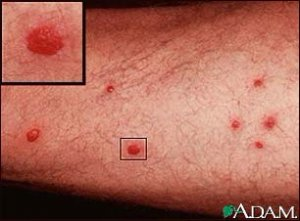Церкариоз или шистосоматидный дерматит