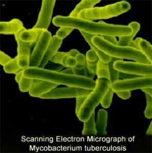 Клинический метод диагностики туберкулеза