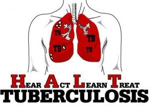Туберкулинодиагностика